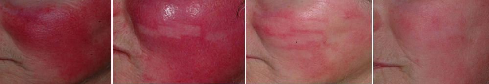 Photo of Rosacea and Dramatic clearing of Facial Redness as a result of treatment